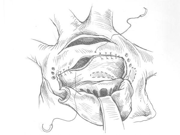 <span>Ilustracja medyczna (1 zdj.)</span><i>→</i>